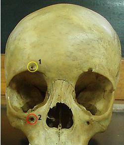 Trochlear nerve; V